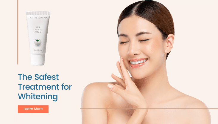 pigmentation-removal-cream-melasma